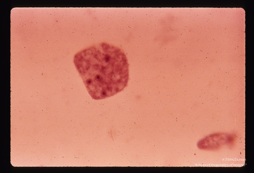 Multinucleate culture form. Hematoxylin stain