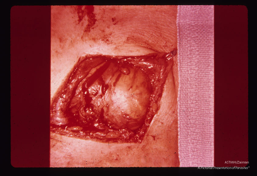 Incision of tissues overlying cyst wall.