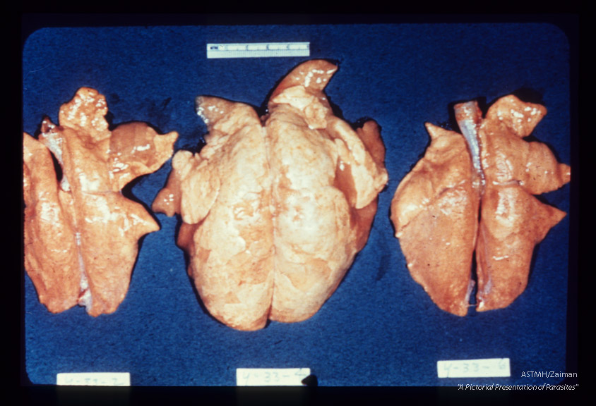 Mouse lungs showing the cumulative effect of concomitant infection with ascarids and a pneumonic virus. The laterally placed lungs have been subjected to either Ascaris or virus; the central lung suffered both infections.