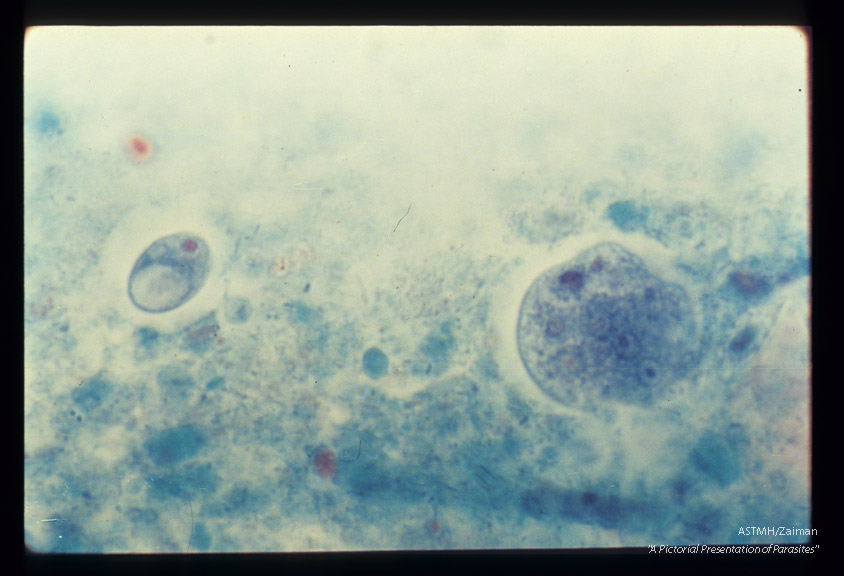 Cysts in stool. Trichrome stain.