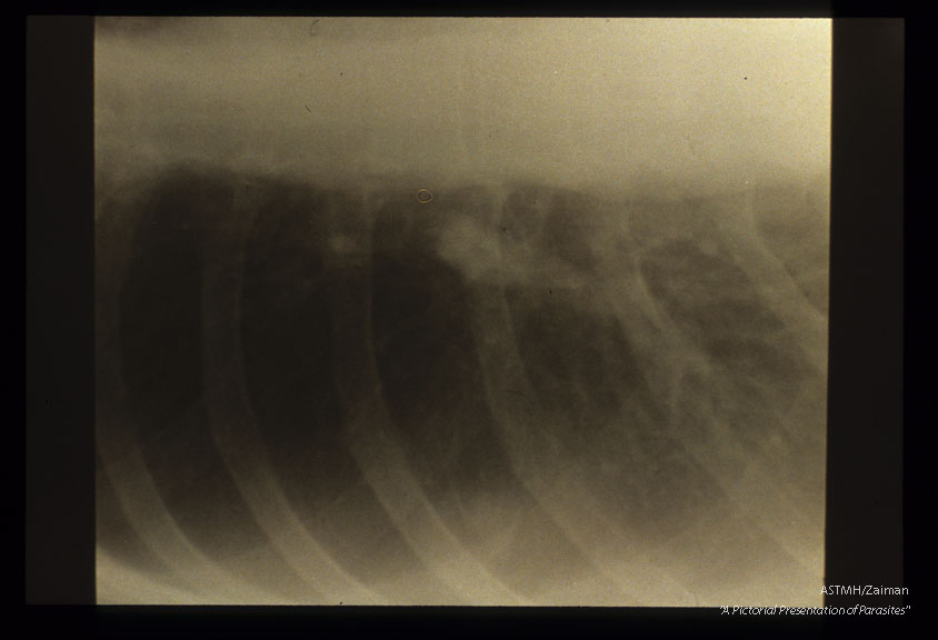 Peripheral nodule seen in chest x-ray.