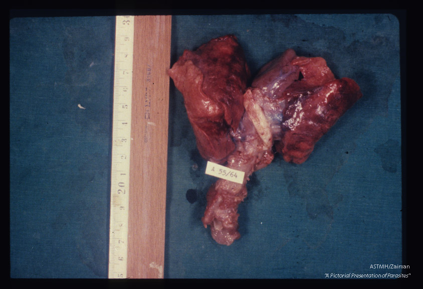 Lungs from infant dead from Pneumocystis pneumonia showing the characteristic brick red color and grooves due to rib pressure on expanded lungs.
