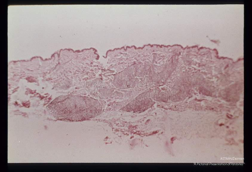 (South America). Hematoxylin-eosin stained section through a pseudo-lepromatous lesion.