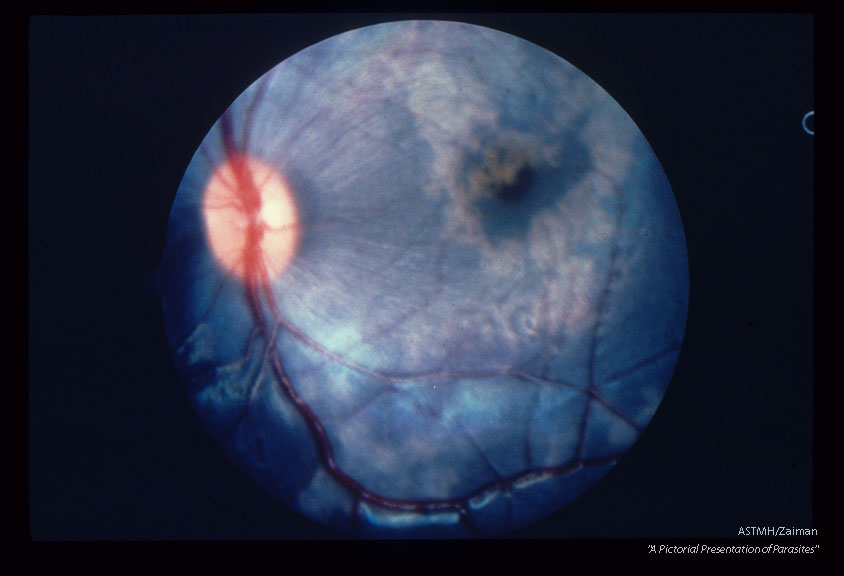 Larva and migratory tracks in fundus of cynomolgus monkey 11 days after experimental infection.