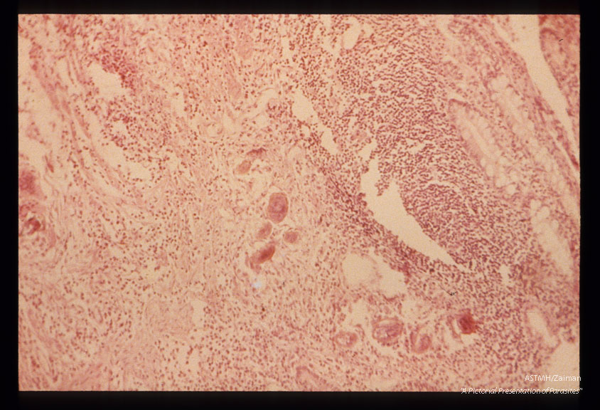 Section of rectum showing eggsand inflammatory infiltrate.
