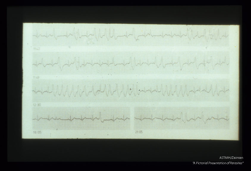 Malignant arrhythmias typical of chronic Chagas' cardiopathy. Holter tracing.