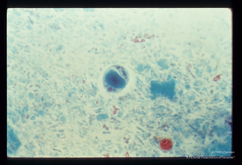 In stool. Trichrome stain.