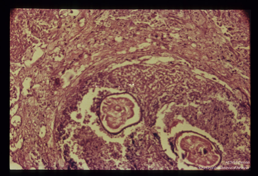 Lung nodule with cross section of filarial nematodes, probably adolescent Dirofilaria.